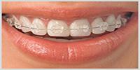 Ceramic Orthodontic Braces